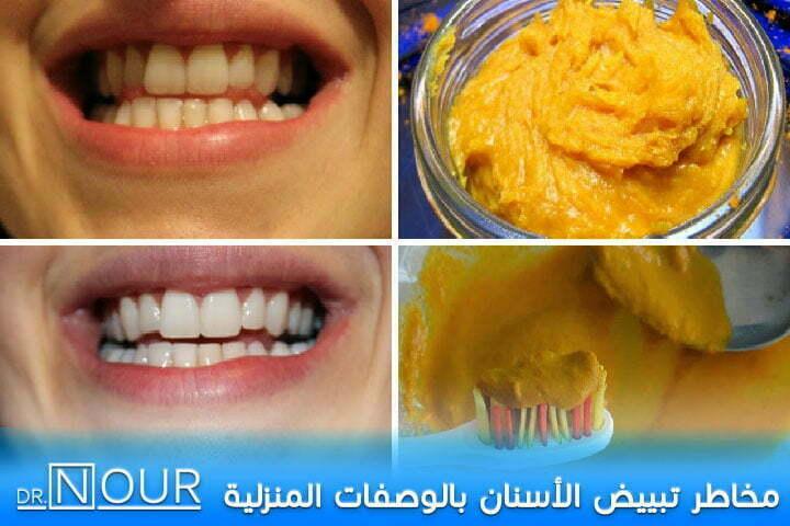 تبييض الاسنان بالوصفات المنزلية