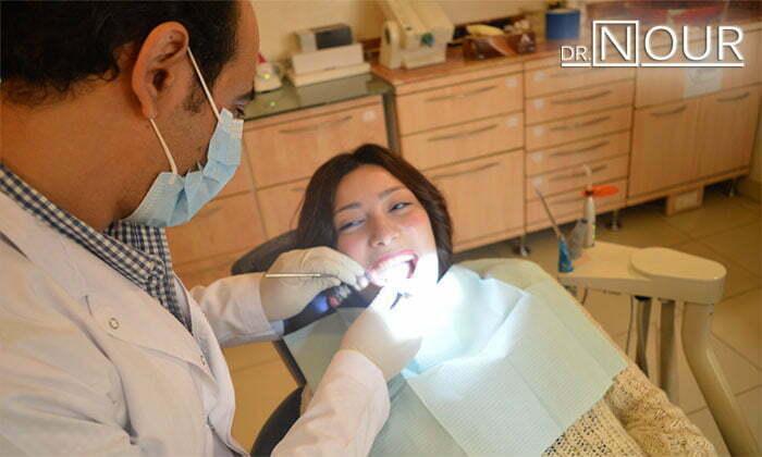 احسن دكتور اسنان في مصر