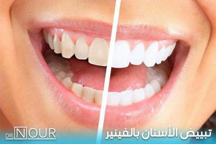 تبييض الاسنان بالفينير
