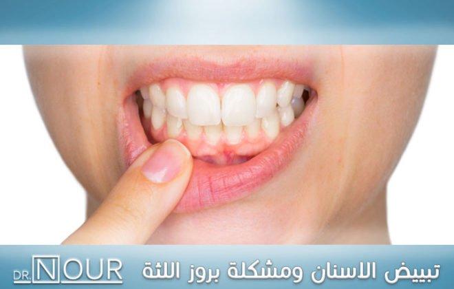 تبييض الاسنان ومشكلة بروز اللثة